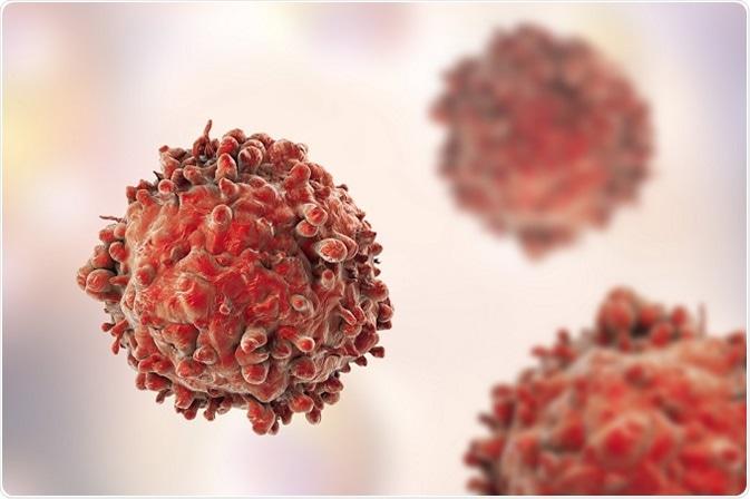 Leukemia, limfoma, danmyeloma